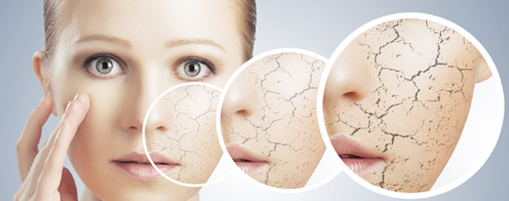 Winter Care For Dry Skin
